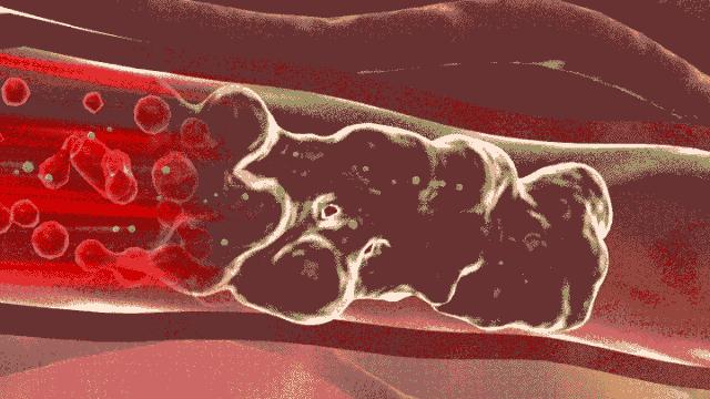 8张图,揭秘血管堵的全过程!
